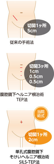 単孔式腹腔鏡下鼠径ヘルニア根治術(SILS-TEP法)