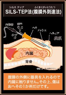 inguinalhernia-treatment_img6